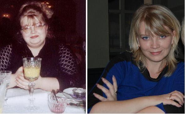 Ольга Бабурина: дои после похудения