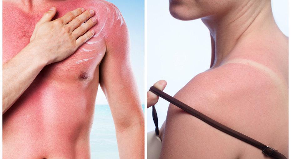 Солнышком стукнуло: народные способы борьбы ссолнечными ожогами