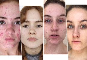 Борьба сакне: пять историй потрясающего преображения