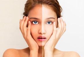 Перебор! 4 способа быстро очистить кожу от искусственного загара