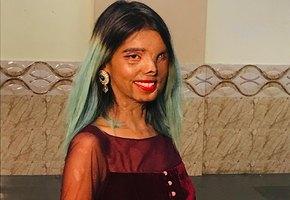 Выжившая: девушка, которую хотел убить отец, вдохновляет людей любить себя