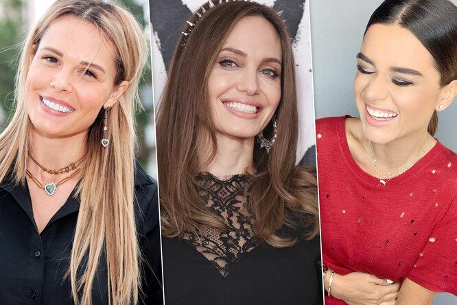 Фарфор нев моде: эксперт объяснил, какой недолжна быть голливудская улыбка