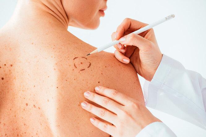 Не только кожа: 5 участков тела, где меланома развивается чаще всего