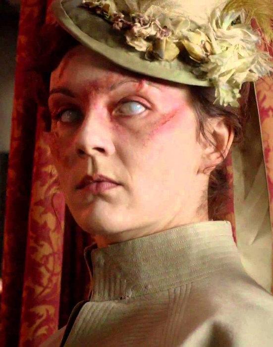 женщина с поврежденным глазом
