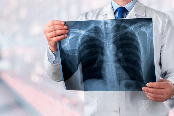 6 признаков «тихой» пневмонии, которые нельзя пропустить