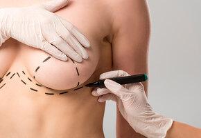 Подтяжка груди без имплантов: сколько стоит, долго ли заживает