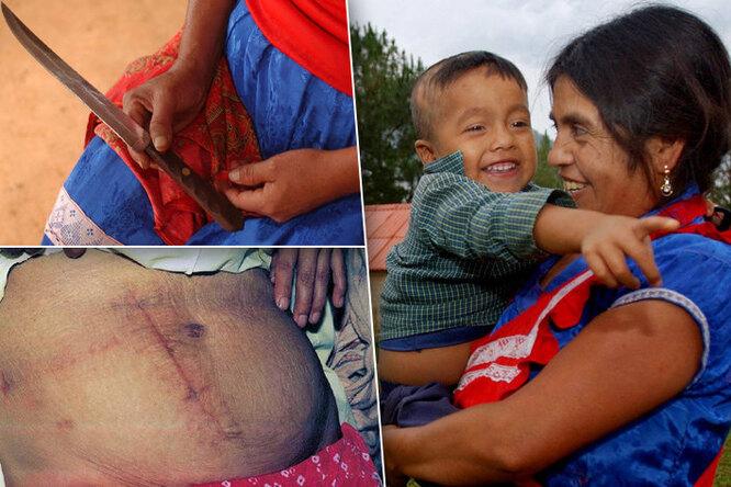 Как она это пережила? Инес Рамирес, женщина, сделавшая себе кесарево сечение