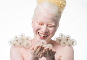 От девочки-альбиноса отказались родители. Она выросла и стала моделью