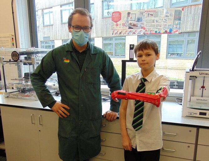 Льюис показывает свой новый бионический протез
