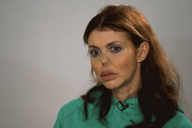 Алиса Аршавина: «Средств наоперацию нет»