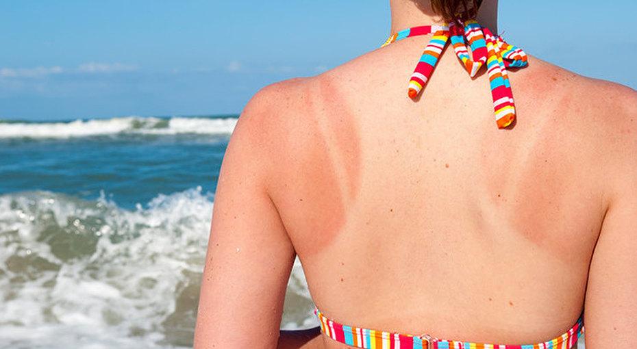 Солнечный ожог: 6 лайфхаков, как отнего избавиться