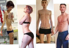 Во время и после анорексии: 10 фотографий людей, которым удалось выжить