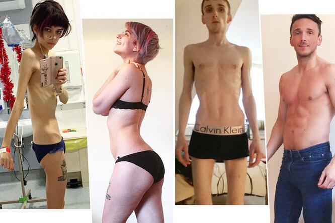 Во время ипосле анорексии: 10 фотографий людей, которым удалось выжить