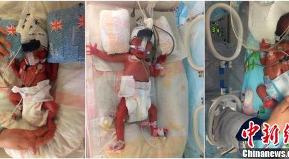 Женщина родила двойню спустя шесть дней после первого ребенка