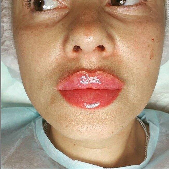 Фото одной из пациенток Брауде
