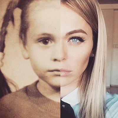 анна хилькевич в детстве, анна хилькевич пластика фото