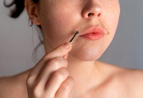 Гормональный дисбаланс, болезни щитовидки и еще 5 причин «лишних» волос на лице и теле