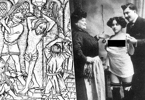 Неожиданно! Как лечили ЗППП в прошлом: пиявки, порка и девственницы
