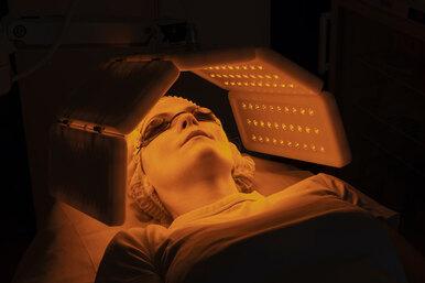 Избавиться отакне ипродлить молодость: как работает фотодинамическая терапия