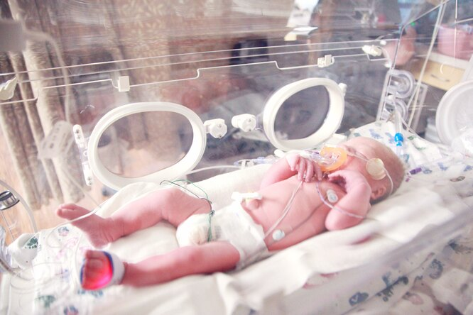 Забывает, как дышать: малыша средким заболеванием спасли навоенном самолёте