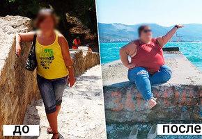 Откровенная история: психоз, комы исто кило лишнего веса