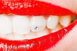 Улыбка сошибкой: 5 вещей, которые нельзя делать со своими зубами устоматолога
