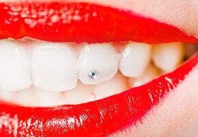 Улыбка с ошибкой: 5 вещей, которые нельзя делать со своими зубами у стоматолога