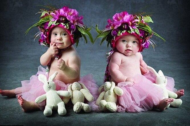Малышки ссиндромом Дауна стали героинями милого календаря