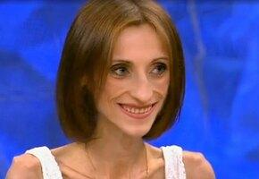 Как сейчас живет Анна Егрчукова из «Пусть говорят», которая весила 26 кг