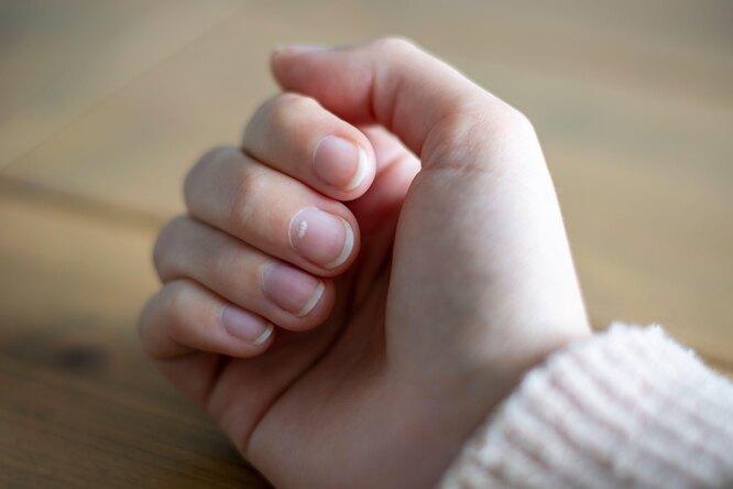 Почему появляются белые пятна наногтях? Икак вообще связаны ногти издоровье?