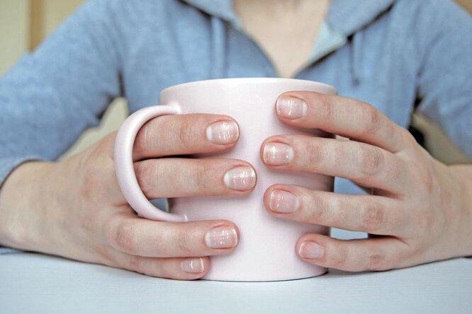 лейконихия, белые полосы на ногтях
