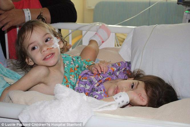 Разделенных сиамских близнецов выписали избольницы. Хроника чуда