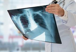 Рак легких: 7 ранних симптомов, которые часто пропускают