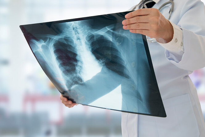 Рак лёгких: 7 ранних симптомов, которые часто пропускают