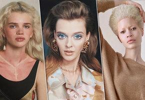 «Нестандартная красота»: успешные модели с особенной внешностью