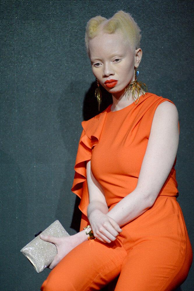 Южноафриканская модель и юрист, альбинос Тандо Хопа, защищающая права альбиносов в Африке