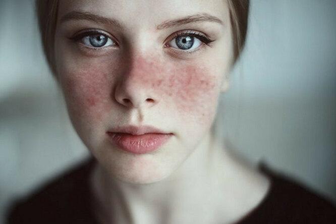«У вас волчанка»: 10 симптомов самой неуловимой болезни