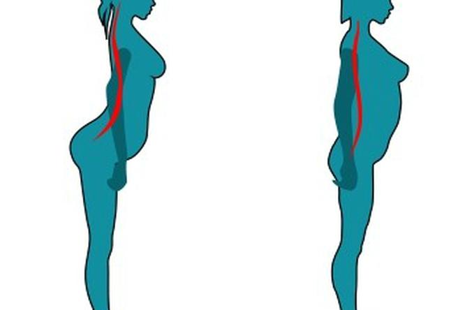 Тест — какие боли вы можете испытывать из-за вашей осанки