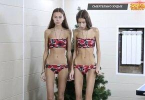 Как сейчас выглядят сестры-близняшки Леденевы, весившие три года назад по 40 кг