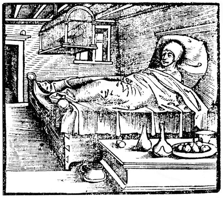 Пациент во время лечения ртутью
