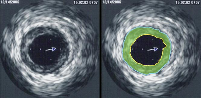 Ультразвуковая диагностика выявила сужение венечной артерии. Зона бляшки отмечена зелёным цветом. Фото: wikipedia