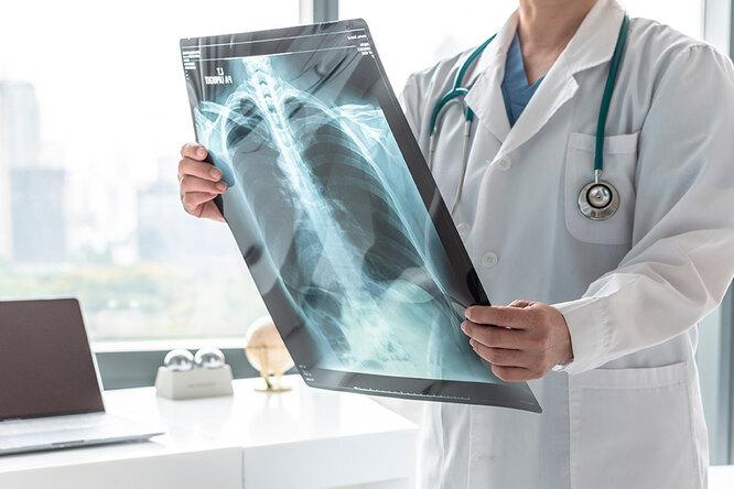 6 признаков того, что это может быть рак легких
