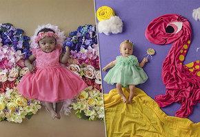 «Драгоценный ребенок»: трогательные фото малышей с серьезными диагнозами