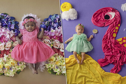 «Драгоценный ребенок»: трогательные фото малышей ссерьезными диагнозами