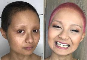 Невероятное преображение: «Я все еще борюсь с раком, но чувствую себя на миллион!»