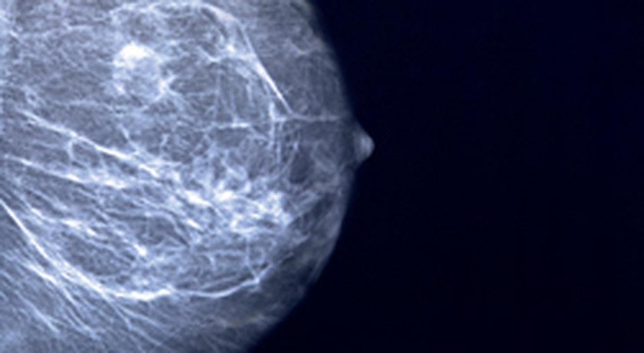 Рак груди неприговор!