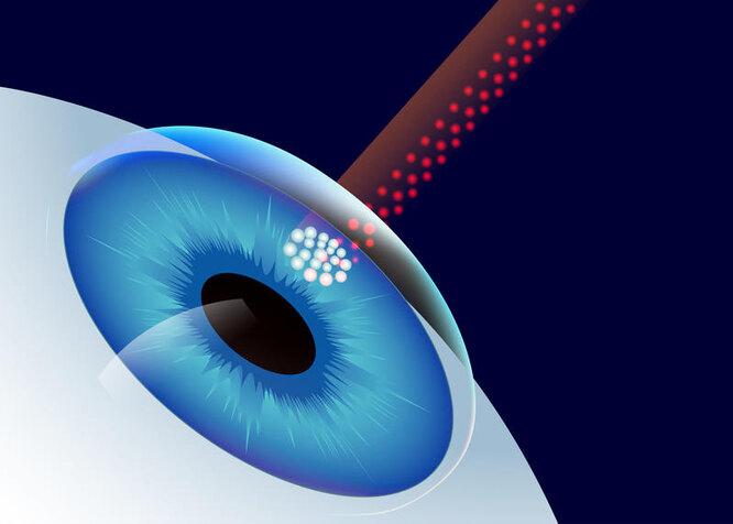 операция при слепоте