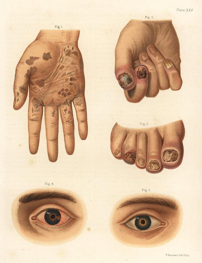 Вторая стадия сифилиса