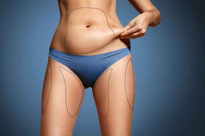 Что делать слишней кожей после похудения? Резать необязательно — уверен врач