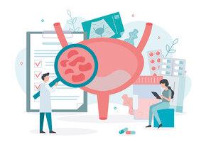 Гиперактивный мочевой пузырь: что делать, если это ваша проблема?